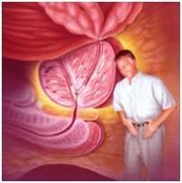 prostatitis crónica el